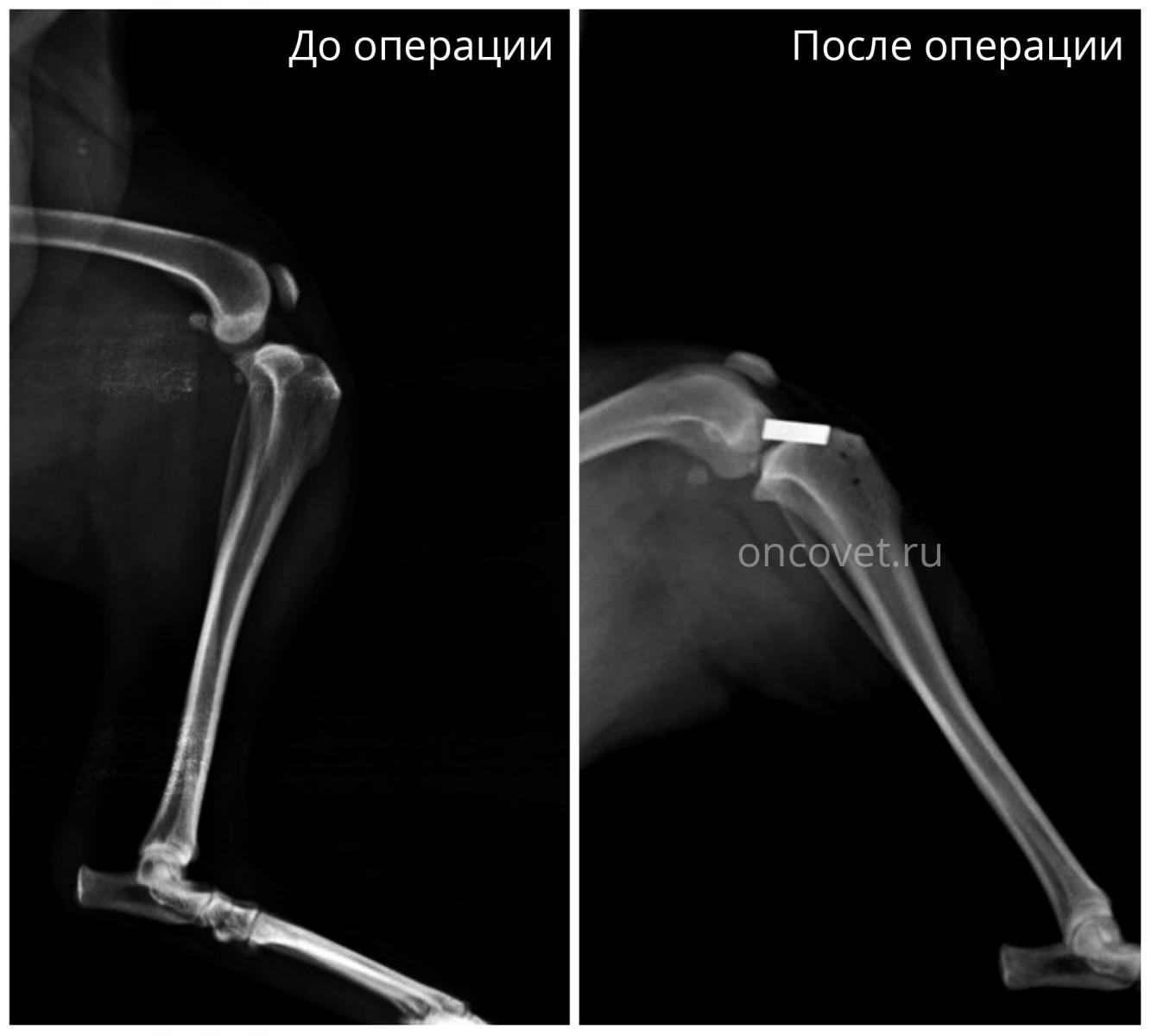 Форум опирация по надрыву связки коленного сустава у собак спб перемотка плечевой сустав эластичным бинтом
