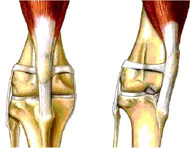 Выпадение сустава коленной чашечки у йорков ограничитель на коленный сустав неопреновый с силиконовым кольцом nkn 209